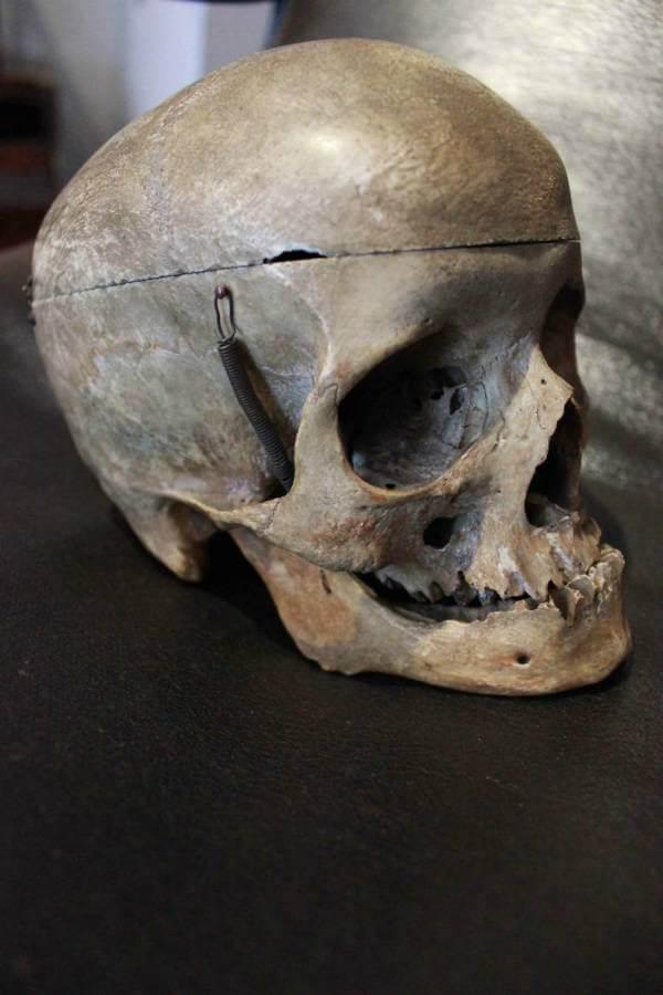 19th Century Human Skull
