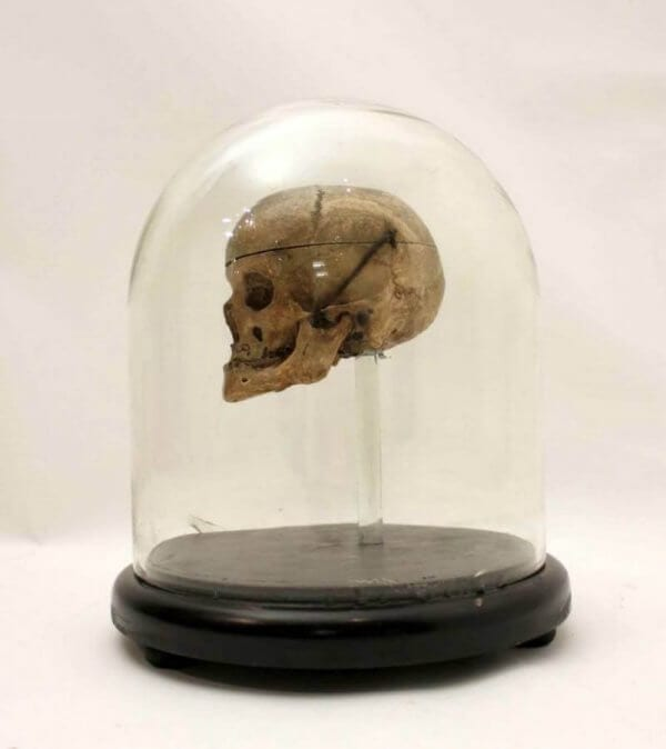 18Th Century Human Skull In A Victorian Glass Dome